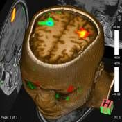 BOLD imaging   Radiology Reference Article   Radiopaedia.org Central Nervous System, Radiology