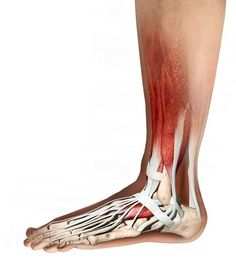Foot anatomy, computer artwork. Muscles are red, tendons and ligaments are white, and bones are cream. At lower right is the calcaneous (heel bone), which is attached to the calf muscle by the Achilles tendon, the largest tendon in the body. Tendons and ligaments are bands of inelastic fibrous tissue. Tendons connect bones to muscle, while ligaments connect bones to other bones. The toes consist of two phalanges bones. The phalanges are joined to the metatarsal bones, which are in the…