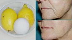 Domáci botox, ktorý vypne kontúry tváre a vyhladí vrásky: Táto maska vám dokáže ubrať pár rokov a pleť vyzerá viditeľne mladšie! Skin Care Specialist, Instant Face Lift, Face Wrinkles, Wrinkle Remover, Skin Food, Skin Firming, Skin Cream, Best Face Products, Face Skin