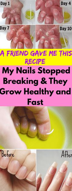 A Friend Gave Me This Recipe & My Nails Stopped Breaking & They Grow Healthy & Fast! A Friend Gave Me This Recipe & My Nails Stopped Breaking & They Grow Healthy & Fast! Home Remedies, Natural Remedies, Health Remedies, How To Grow Nails, How To Make, Grow Nails Fast, Grow Long Nails, Beauty Hacks For Teens, Transparent Nails
