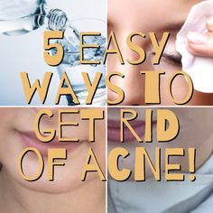 Get rid of acne and pimples fast and easy with these affordable products