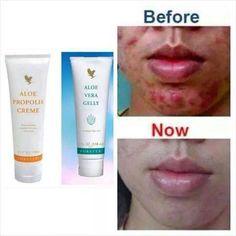 Masalah kulit wajah seperti Jeragat, Jerawat, kulit tak sekata mampu di atasi secara eco aloe vera #aloeveracyber Forever Living Products, Aloe Vera