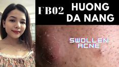 Skin Tag Removal, Old Video, Blackhead Remover, Da Nang, Acne Treatment, Pimples, Face, Youtube, Homemade Tools
