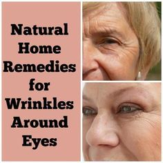 Home Remedies For Wrinkles Under Eyes | Cute Parents