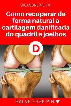 Quadril dor | Como recuperar de forma natural a cartilagem danificada do quadril e joelhos | Estas dicas e remédios naturais são excelentes e vão ecuperar a cartilagem do seu quadril e joelhos, livrando você de dores e outros incômodos. Leia e aprenda!