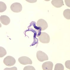 Trypanosoma brucei ssp. in thin blood smears stained with Giemsa.