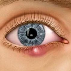 Eye Stye Home Treatment... i wonder if these work well?