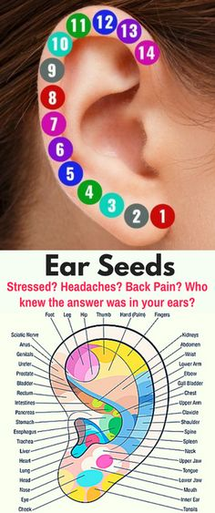 Stressed? Headaches? Back Pain? Who knew the answer was in your ears? #acupuncturebackpain #HowToGetRidOfBackPain