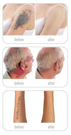 Cover up tattoos, scars & birthmarks Tattoos To Cover Scars, Cover Tattoo, Body Makeup, Contour Makeup, Skin Makeup, Full Makeup, Tattoo Makeup Coverup, Makeup Tattoos, Tatoo