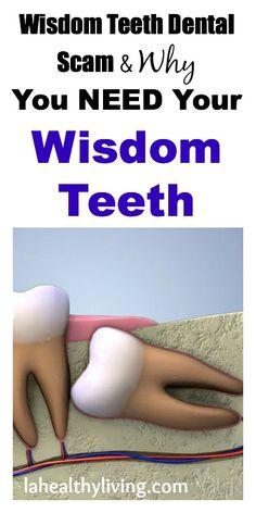 Wisdom Teeth Dental Scam & Why You Need Your Wisdom Teeth
