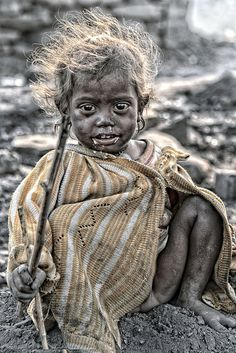 a malnourished child in the coal mines of Dhanbad