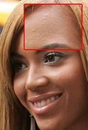 Beyonce - Celebrities with acne. GlendaleAcneClinic.com