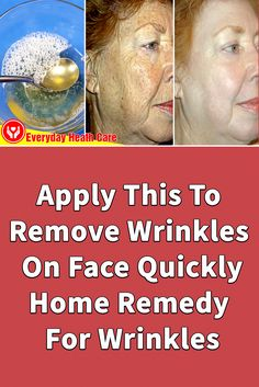 How To Grow Nails, How To Apply, Diy Acne Mask, Home Remedies For Wrinkles, Eye Sight Improvement, Face Wrinkles, Anti Aging Treatments, Wrinkle Remover, Natural Skin Care