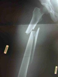 An X-ray shows a fracture in the femur of a woman who used Fosamax for seven years.