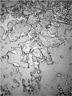 8 lágrimas vistas bajo microscopio revelan diferentes emociones. Risa,