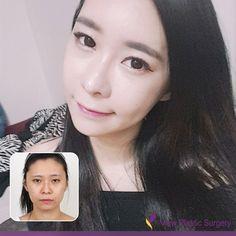 plastic surgery korea asia plastic surgery plastic surgery in korea plastic surgery facial bone contouring breast surgery eye surgery boobs job nose surgery rhinoplasty nosejob