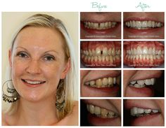 Benefits of Veneers Cost effective as they don't require months of adjustment appointments as is often the case with wearing braces. The entire process takes just 2-3 visits. In recent years Dental Veneers have become very popular with celebrities like Cheryl Cole, Catherine Zeta-Jones, Tom Cruise and Nicholas Cage (to name but a few) all opting for the ease and great results achieved by veneers.