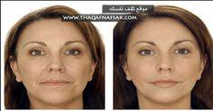 تجاعيد الوجه والخطوط الدقيقة حول العينين مشكلة مؤرقة، نضطر معها للجوء إلى مستحضرات التجميل. مستحضرات التجميل قد تكون حلًا في بعض الأحيان، لكنها حل مكلف للغ