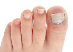 Tırnak Mantarını Yok Eden Doğal Yöntem - Sağlık Paylaşımları Ingrown Toenail Treatment, Ingrown Toe Nail, Home Remedies For Acne, Natural Remedies, Feeling Ugly, Prevent Wrinkles, Toe Nails, Nail Care, Skin Care Tips