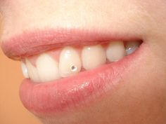 Dental Tooth Jewel Bling - This is not supposed to be funny, but I find it HILARIOUS that someone would want to bedazzle their teeth. Dental Jewelry, Tooth Jewelry, Tooth Gem, Dental Teeth, Grillz, White Teeth, Peircings, Body Mods, Dentistry