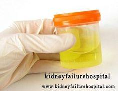 Почему у пациентов с ХПН меньше мочиться? http://www.kidneyfailurehospital.com/symptoms/470.html После диагнозирования с хронической почечной недостаточностью (ХПН) частные пациенты заметили, что меньше мочились. Это почему? Что значит меньше мочиться?