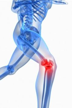 #Knee Pain - Natural Home #Remedies http://www.foodlve.com/article2.php?url=aches-pains-knee-pain-natural-ayurvedic-home-remedies