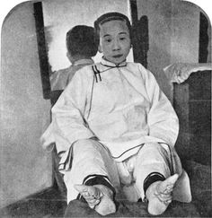 """""""...Another wondrous accompaniment of summer is the appearance of human feet. ...""""     Photo: """"Lily feet"""" of a high caste Chinese lady, 1911."""