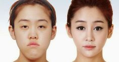 Young Koreans Before and After Plastic Surgery photos) - liposuction plastic surgery Extreme Plastic Surgery, Korean Plastic Surgery, Plastic Surgery Photos, Korean Surgery, Skin Care Routine For 20s, Skincare Routine, Eyelid Surgery, Cosmetic Procedures, Medical Problems
