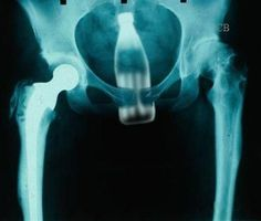 "Insane X Rays.  I'll hazard a guess that this pt probably told the dr, rn, & rad tech ""I slipped & fell on that bottle"". Yeah. There's a sphincter down there. Plus, were you just walking around naked & that bottle just attacked your poor defenseless butt? Just sayin'....."