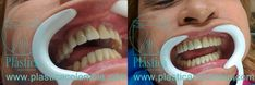 Screenshot Oral Hygiene, Al Dente, Dental Extraction, Bone Grafting, Dental Implants