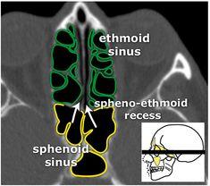 Startradiology Brain Anatomy, Medical Anatomy, Skull Anatomy, Paranasal Sinuses, Maxillary Sinus, Internal Carotid Artery, Sinus Surgery, Nasal Septum, Radiology Imaging