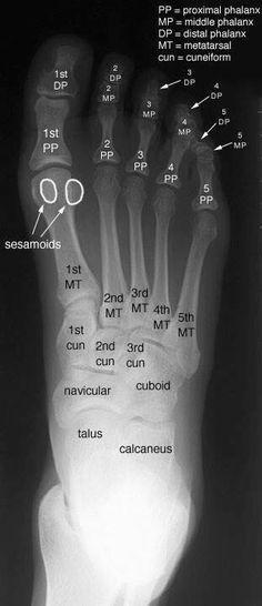 Radiographic Anatomy of the Skeleton: Foot -- Anteroposterior (AP) View, Labelled Radiology Schools, Radiology Student, Nursing School Tips, Nursing School Notes, 1000 Lifehacks, Medical Anatomy, Human Anatomy And Physiology, Medical Coding, Medical Imaging