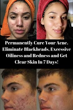Ebook free download forever clear skin
