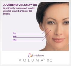 "More Distinct Cheekbones - ""Juvederm Voluma, unlike a filler, is more of a volumizer. By injecting 2-4 syringes of Juvederm Voluma to the cheek bone region, it can provide enhancement to the cheek area, providing for a younger, more refreshed look...""     Not only does it have the effect giving the cheek bones more projection, by filling these upper face area, it also gives a lift that can make the parentheses lines less deep and also improve the jowls along the jawline."