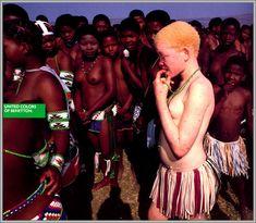 Albinos - 1992 - Toscani