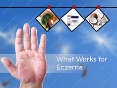 """How to solve the biggest problem of Eczema.  """"Stop Scratching!!"""" Yes, the words all parents utter several times a day, but it's not that easy to stop despite knowing that scratching can worsen your eczema. It can cause infection in the skin as bacteria finds its way in. There are different methods and medications all around the globe that can help you relieve eczema. Here are few medications that that will help you to know """"what works for eczema""""."""