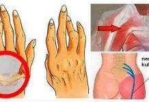 To rozwiązanie pomoże Ci walczyć z zapaleniem stawów, rwa kulszową i bólem pleców