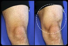 ejercicios para la artritis de rodilla