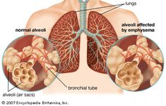 Asthma and emphysema are two different respiratory disorders, but they are confused as one sometimes due to few common symptoms between them. Asthma is inflammation of lungs and air tubules called alveoli where the exchange of air takes place. Natural Asthma Remedies, Natural Cures, Herbal Remedies, Health Remedies, Natural Treatments, Chest Congestion Remedies, Congestion Relief, Lunges, Ideas