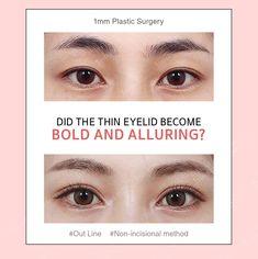 Double Eyelid, Eyelid Surgery, Asian Eyes, Plastic Surgery, Beauty Secrets, Seoul, Outline, Distance, Eyebrows