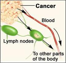 Metastasis. Cancer cells invade lymph nodes and blood vessels near a tumor and spread to other parts of the body.