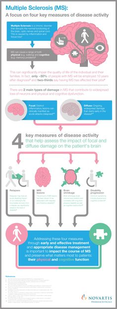 Multiple Sclerosis: A focus on four measures of disease activity