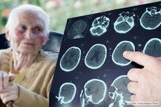 "Científicos argentinos buscan revelar la ""firma molecular"" del Alzheimer - Télam - Agencia Nacional de Noticias"