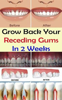 Holistic Health Remedies Grow Back Your Receding Gums In 2 Weeks Poor oral hygiene, resulting in plaque buildup is the primary cause of gum disease. Other factors that can contribute to this problem, include: Gum Health, Teeth Health, Dental Health, Healthy Teeth, Oral Health, Health Care, Tongue Health, Hair Health, Dental Care