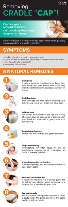 Get rid of cradle cap - Dr. Axe http://www.draxe.com #health #holistic #natural
