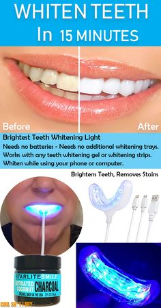 Make you're teeth white in just 15 minutes with the brightest teeth whitening light. This gadget needs no batteries or any additional teeth whitening trays. Connect it to you're smartphone or a USB port. Gum Health, Oral Health, Health Care, Teeth Health, Dental Health, Causes Of Mouth Ulcers, Best Mouthwash, Receding Gums, Pediatric Dentist