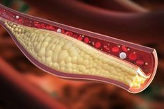 Cholesterol hdl ldl cholesterol reducing foods,how to lower cholesterol foods to help lower your cholesterol,how to reduce cholesterol naturally home remedies natural cures for high cholesterol home remedies. Cholesterol Symptoms, Lower Your Cholesterol, Reduce Cholesterol, Cholesterol Diet, Cholesterol Levels, Clogged Arteries, Clear Arteries, Strong Drinks, Healthcare News
