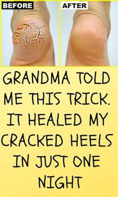 Are you looking at how to heal deep cracked heels naturally at home? This article has covered all the natural remedies for dry cracked feet. Foot Remedies, Hair Loss Remedies, Health Remedies, Natural Remedies, Cracked Heel Remedies, Cracked Heals Remedy, Heal Cracked Heels, Best Hair Loss Shampoo, Hair Shampoo