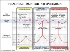 Interperting Fetal Heart Monitors