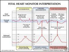 Interperting Fetal Heart Monitors